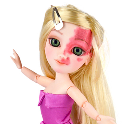 Makie doll with blonde hair, pink dress and facial birthmark over one eye and forehead.